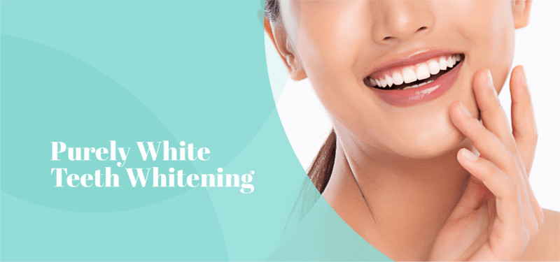 Purely Teeth Whitening